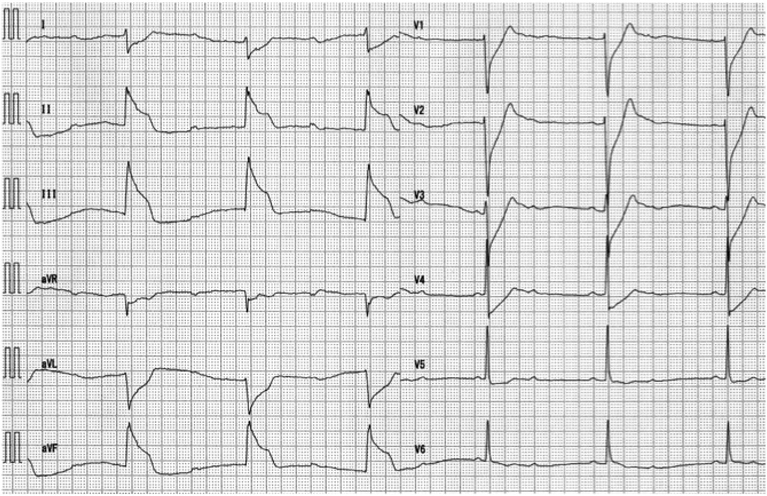 Resuscitated Out Of Hospital Cardiac Arrest With Normal Postresuscitation 12 Lead