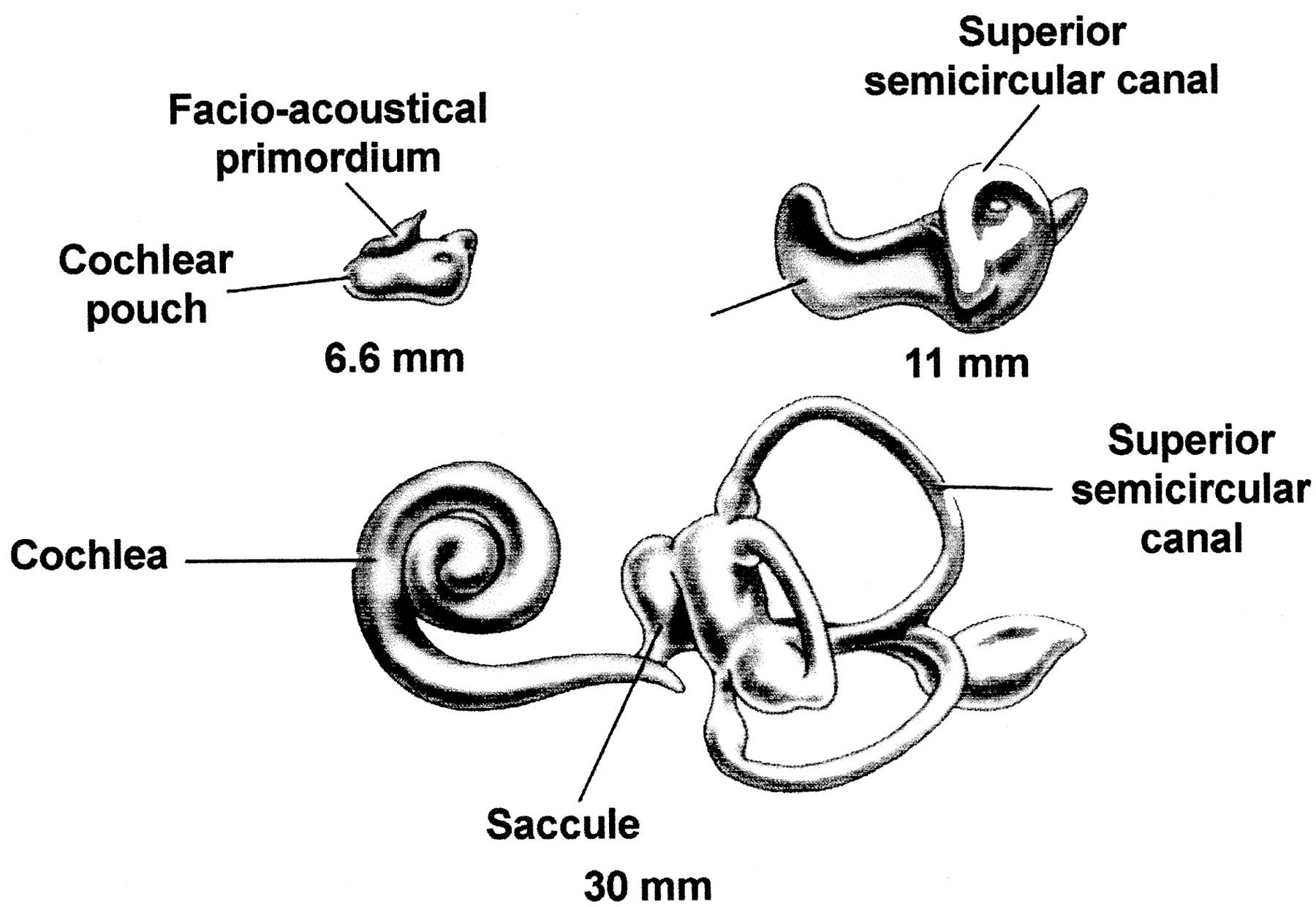 Anomalous Facial Nerve Cwith Cochlear Malformations