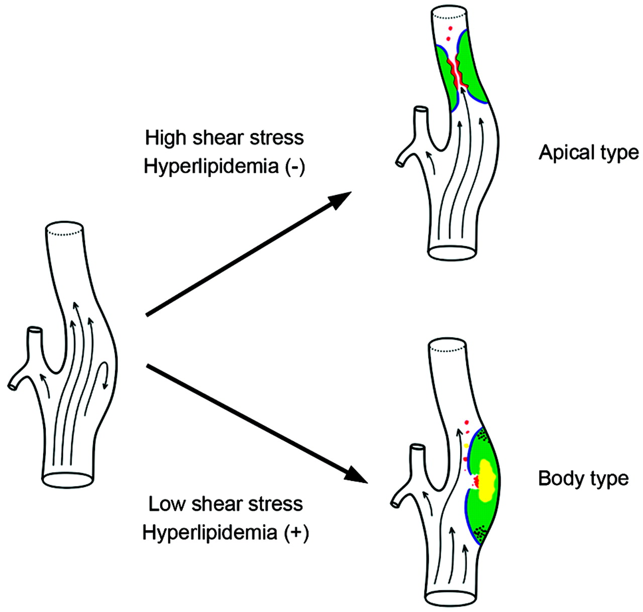 Atherosclerotic Carotid Stenoses Of Apical Versus Body