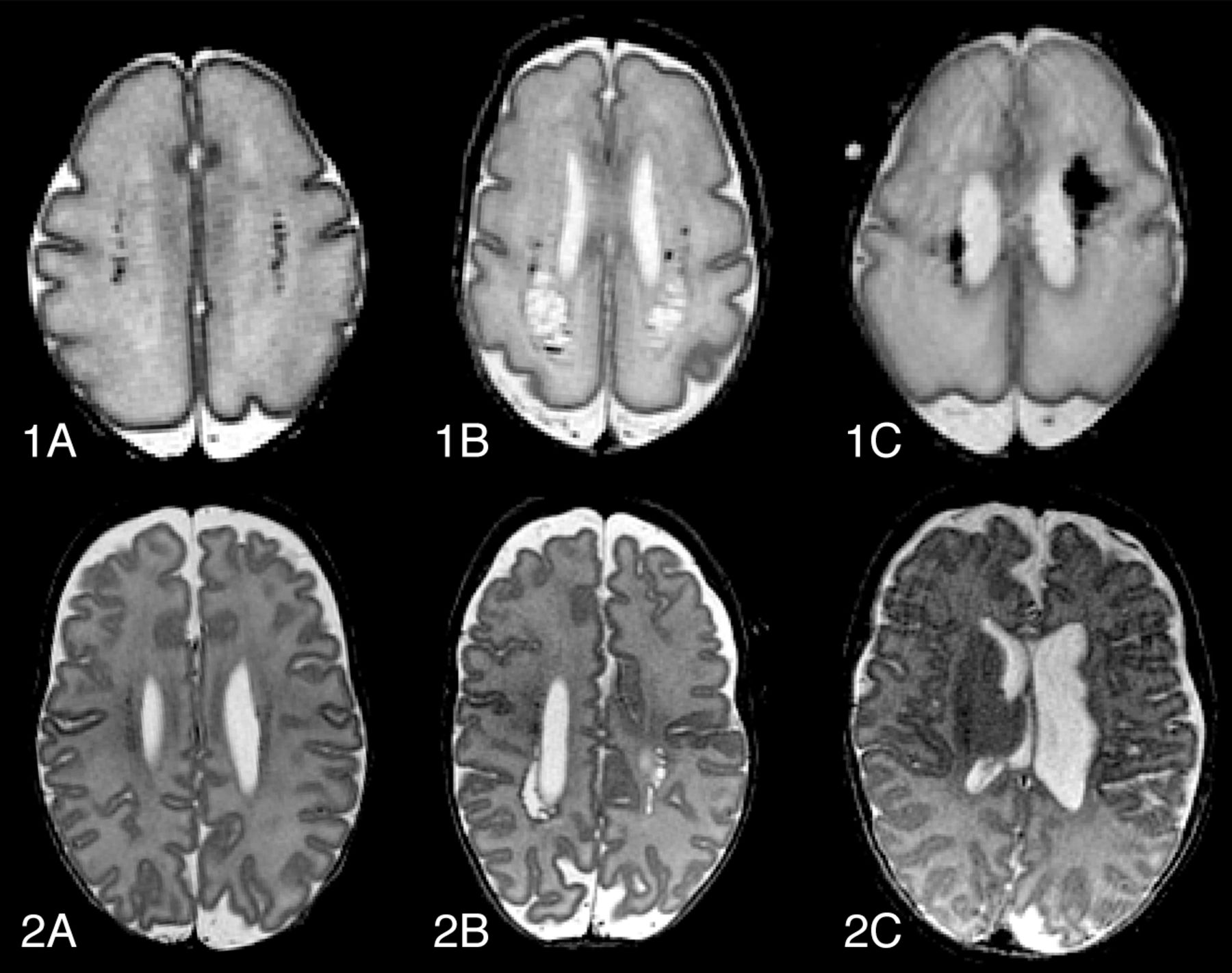 Optimal Timing Of Cerebral Mri In Preterm Infants To Predict Long Term Neurodevelopmental