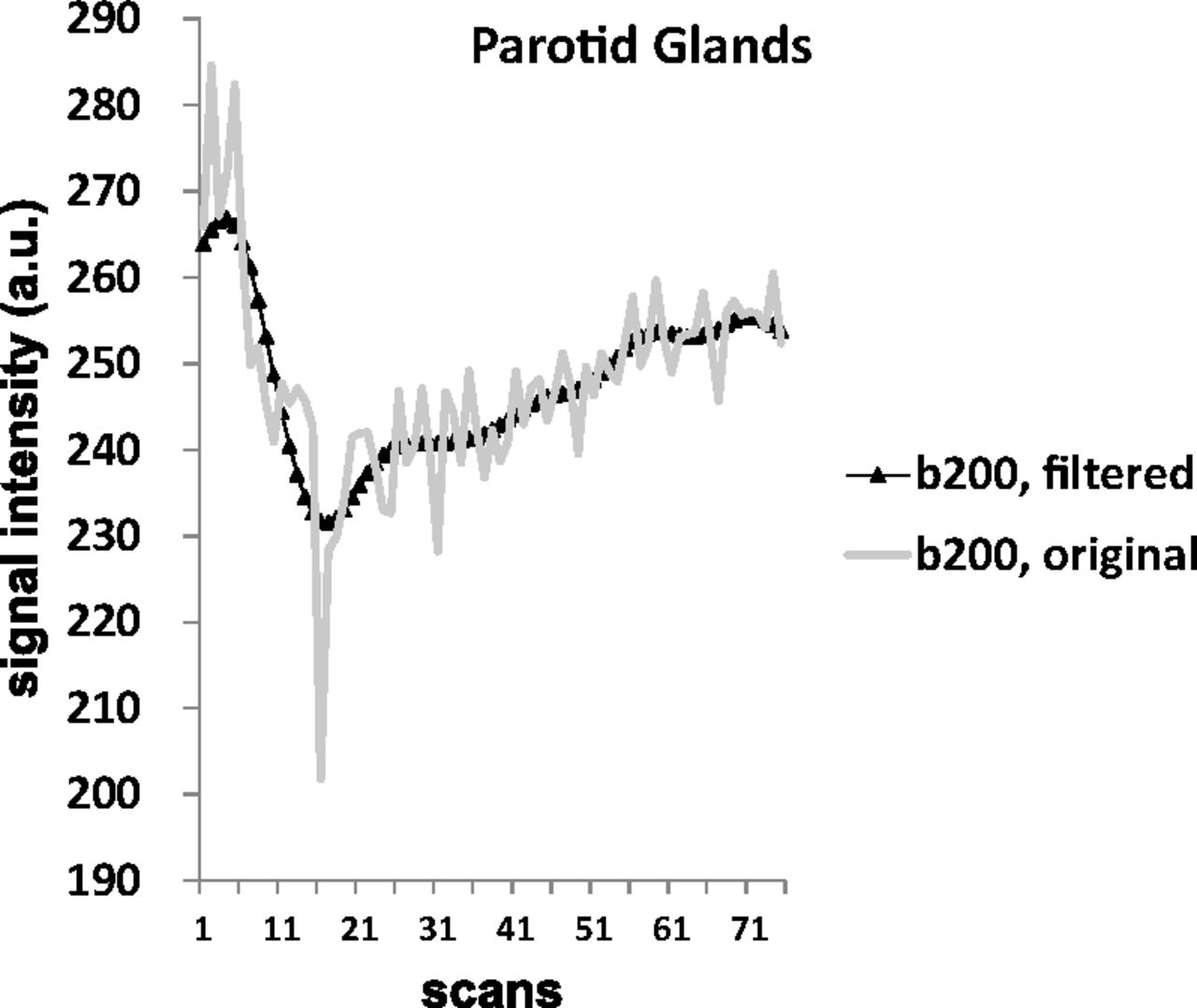 Evaluating Instantaneous Perfusion Responses Of Parotid Glands To Gustatory Stimulation Using