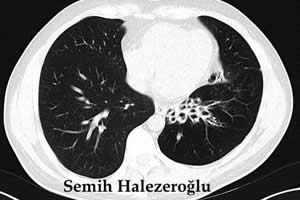 bronşektazi tomografi görüntüsü