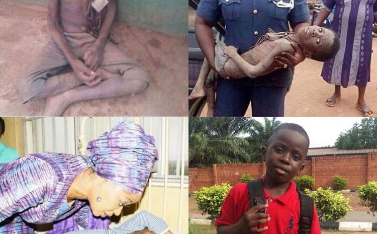 Transformation: Healthy Photo of Little Hungry Boy Who Was Chained By His Father For Stealing