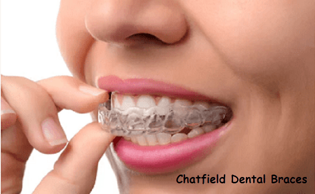 Why You Need Invisalign Braces To Get Your Smile Back