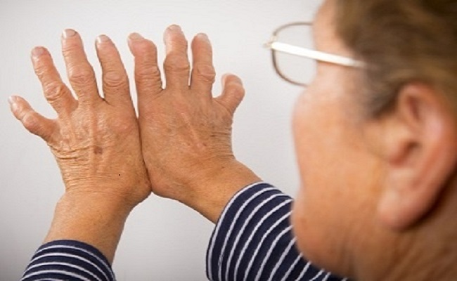 Best Foot Massage Therapy for Arthritis Patients