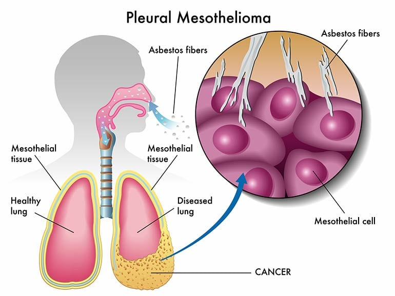 Mesothelioma Symptoms and Signs
