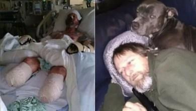 """صورة رجل أمريكي يفقد أطرافه الأربعة بسبب """" لعقة كلب """" !"""