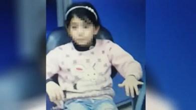 Photo of تركيا : اعتقال سوري قام بتعذيب طفلة زوجته بوحشية على مدار أشهر في هذه المدينة