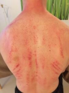 Gua sha akupunktur