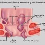 وصفة جمال الصقلي لعلاج البواسير