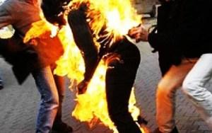 مراكش: مجهولون يضرمون النار في جسد فتاة بعد إختطافها