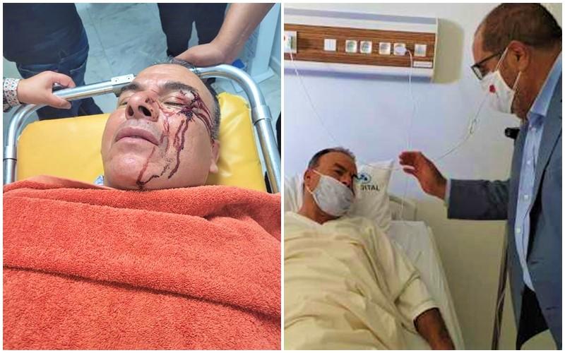 رحاب: عصابة مدفوعة من رئيس جماعة عن 'البام' تعتدي على مستشار برلماني اتحادي