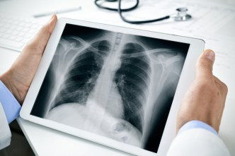 x-ray in mobile, AL