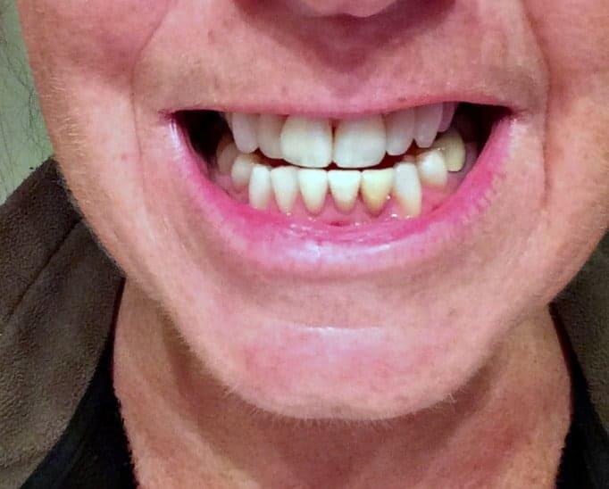 using Smile Brilliant