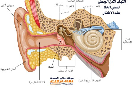 التهاب الأذن الوسطى المصلي الحاد عند الأطفال مجلة عالم الصحة