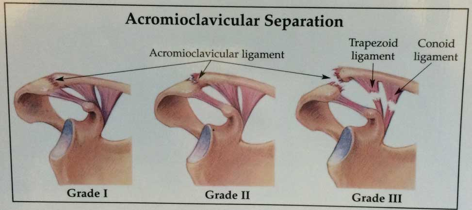 Acromioclavicular Ligament Tear A Simple Life Of Luxury