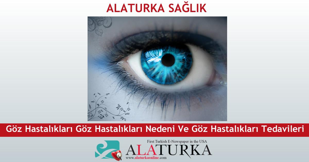 Göz Hastalıkları Göz Hastalıkları Nedeni Ve Göz Hastalıkları Tedavileri