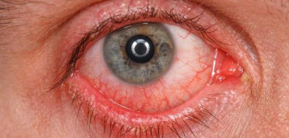 """احمرار العين """" بقعة دم في بياض العين """" وكيفية الوقاية منها"""