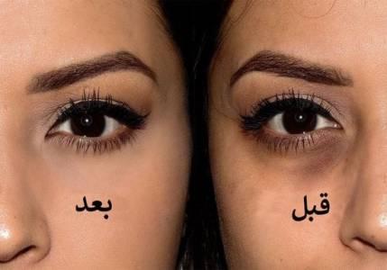 كيفية ازالة الهالات السوداء تحت العين باسرع وقت