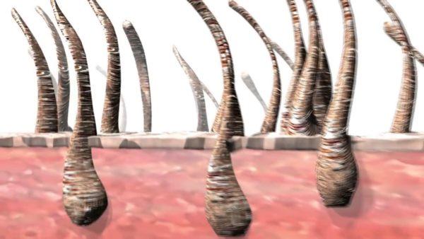 ظهور الشعر بعد الليزر بيومين