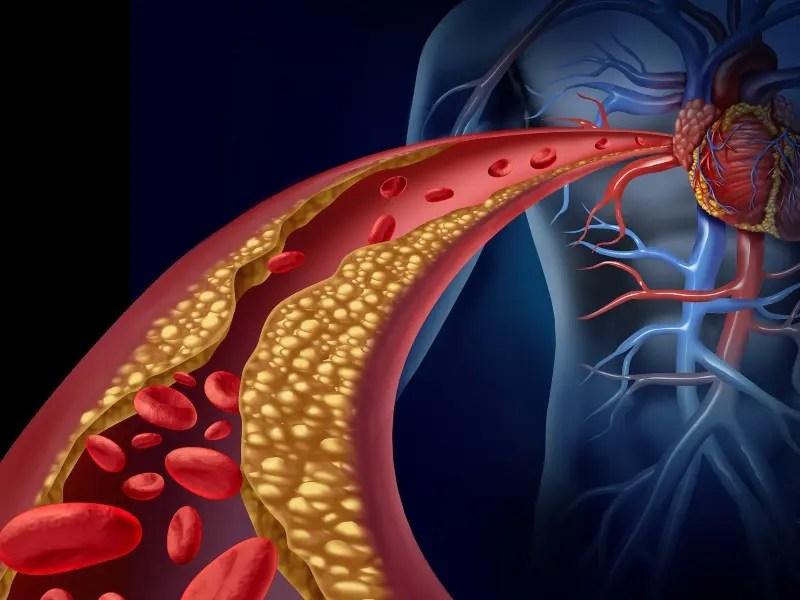 أمراض القلب في إزدياد فكيف نقلل من خطرها؟