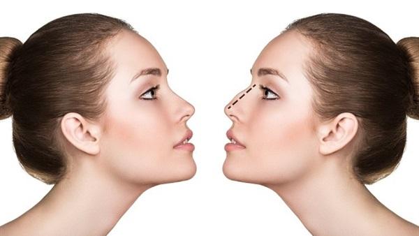 البوابة نيوز طرق طبيعية لتصغير الأنف بعيدا عن عمليات التجميل