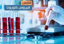 صورة حالة وفاة جديدة بفيروس كورونا و21إصابة محلية جديدة في قابس