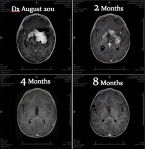 Huile de Rick Simpson et tumeur cérébrale