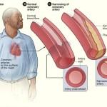 drinking and coronary artery