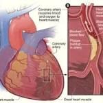 heart attack survival