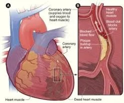alcohol and cardiovascular disease