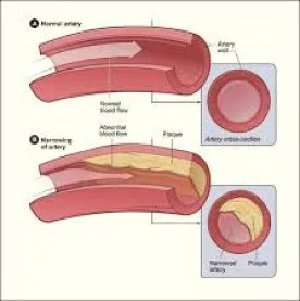 drinking and atherosclerosis