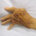 alcohol and rheumatoid arthritis