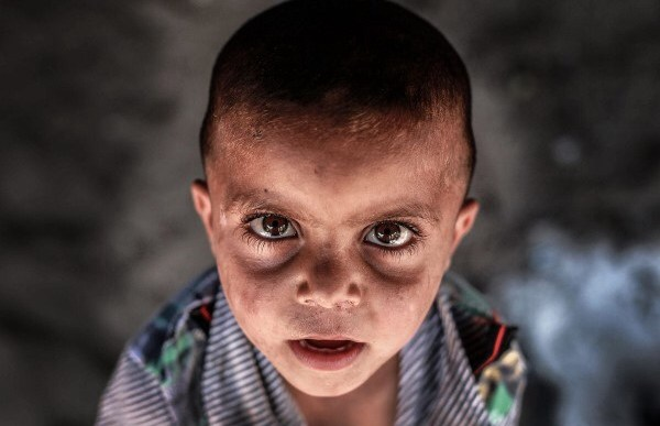 غزة تفكك حصارها