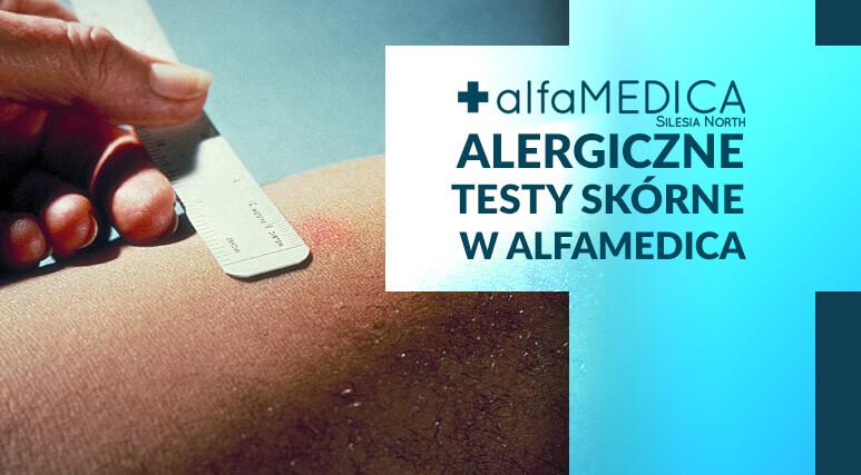 testy alergologiczne