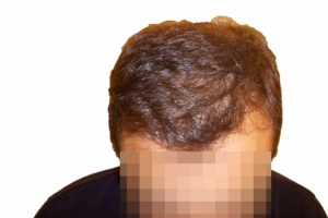 Efter hårtransplantation mod hårtab hos mand