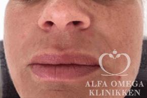 Før behandling mod grove porer