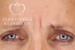Vredesrynke før behandling med Botox