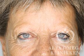 Før hårtransplantation af øjenbryn hos kvinde