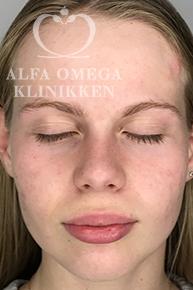 Efter behandling med Kleresca mod acne og ar hos Alfa Omega Klinikken
