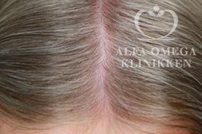 Før behandling med Rephair® hårbehandling mod hårtab