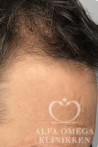 Før behandling mod hårtab med Rephair® hårbehandling