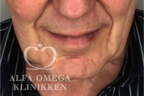 Før hollywood løft og fjernelse af løs hud i ansigtet hos Alfa Omega