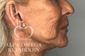 Før fjernelse af slap hud i ansigtet