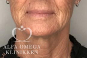 Før hollywood løft hos Alfa Omega Klinikken i København