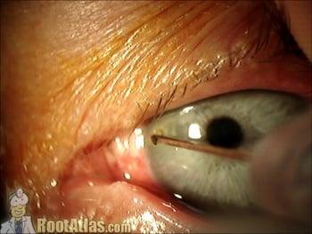 Inch Diamond Eye Cat Back Exhaust On  Duramax