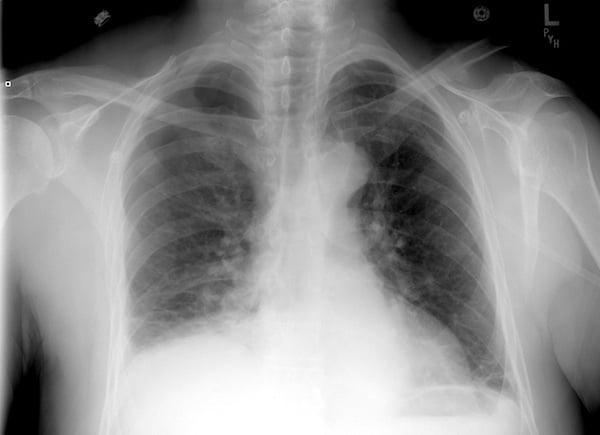 Pneumothorax xray