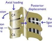 cervical fractures diagram