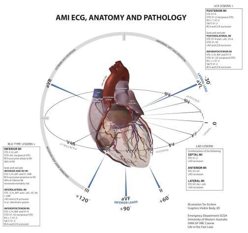 20110408AMI_EKGgeography