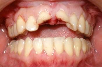 Dental trauma teeth mouth